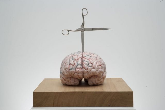 Brain with Star, 2012; silicon, pigment, glass, stainless steel; 27,2 x 39,9 x 28,8 cm; Foto: Pat Verbruggen