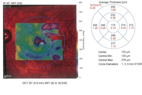 OCT retinite pigmentosa