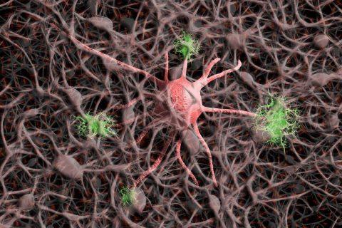 cellule nervose Alzheimer